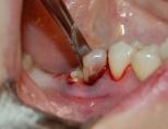 Удалили зуб что делать после удаления