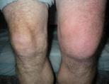 Что делать если колено опухло и болит, причины, эффективное лечение