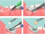 Как долго заживает зуб мудрости после удаления?