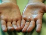 Что делать, если потеют ладони рук?