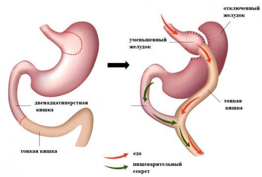 как уменьшить желудок чтобы похудеть
