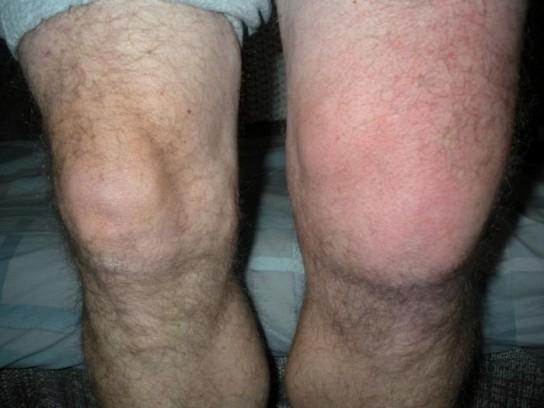 Болит колено после ушиба чем лечить санаторий в казахстане лечение суставов