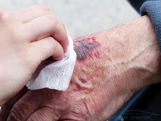 Чем вытянуть гной из закрытой раны в домашних условиях