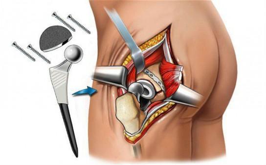 Болит тазобедренный сустав что делать санаторное лечение суставов в ейске