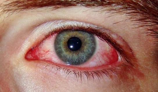 Лопнул сосуд в глазу – что делать, чем лечить Почему лопаются сосуды в глазах