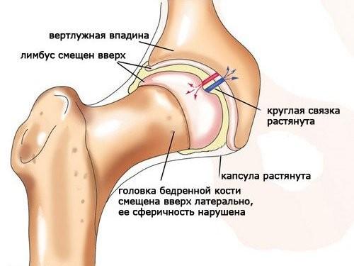 Как лечить боль в тазо бедренном суставе артрита височно-нижнечелюстного сустава